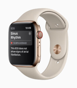 Apple-Watch-Series4-ECG-ChicDivaGeek